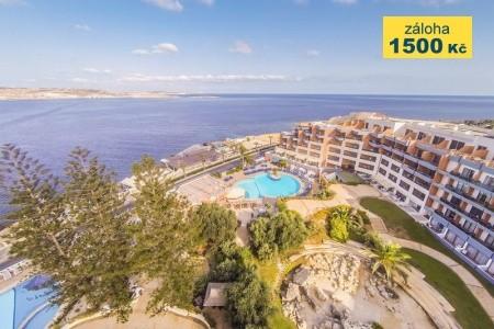 Dolmen Resort Hotel - hotel